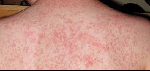 measles for web_1524102788702.jpg.jpg